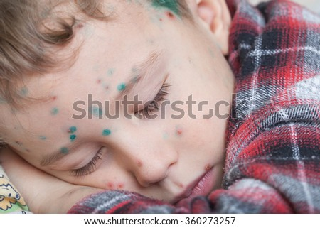 Portrait of a sleeping boy with chicken-box (green dots made with blakstonia or brilliant essence are used to distinguish between new and old pock-marks) - stock photo