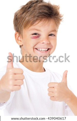 Portrait of happy boy with bruise, showing thumbs up gesture, isolated on white background - stock photo
