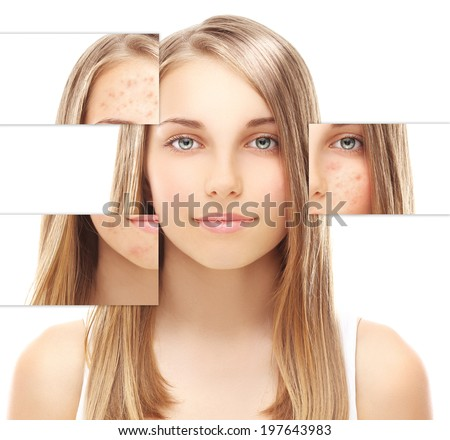 Portrait of teenage girl  with problem and clear skin, aging and youth concept - stock photo
