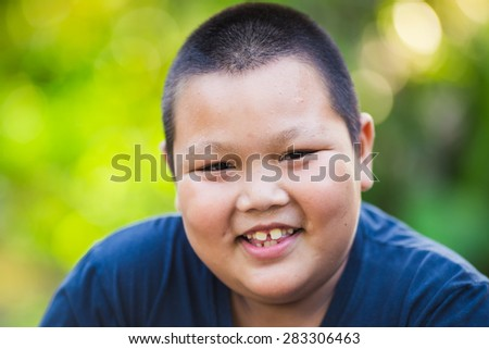 Portrait of 9 years boy. He is fat and his milk tooth look so funny.  - stock photo