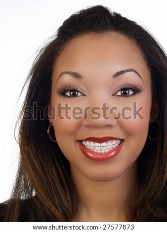 Portrait of young black woman with braces upper teeth - stock photo