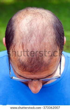 portrait of young man with bad eyesight and hair loss. - stock photo