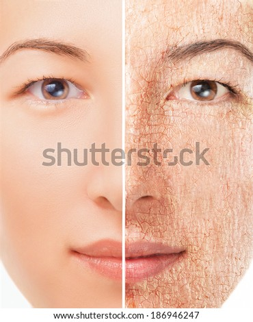 Portrait of young woman with half of dry skin and another half with smooth skin, concept of skincare - stock photo