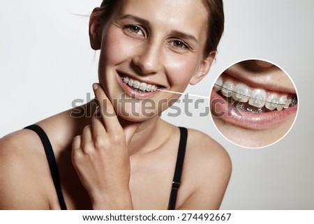 pretty girl is smiling with braces and lens showing them bigger - stock photo