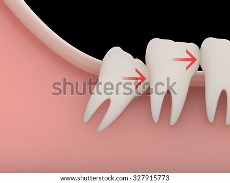 Problems caused by impacted wisdom teeth include.Crowding(rendering) - stock photo