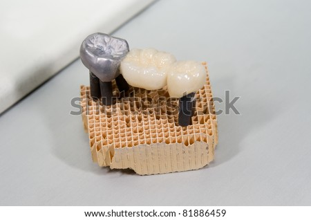 production, lab, dental bridge - stock photo