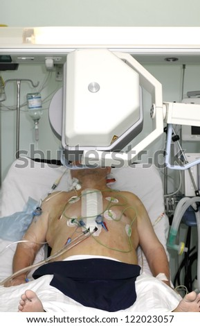 production of X-rays in the ICU - stock photo