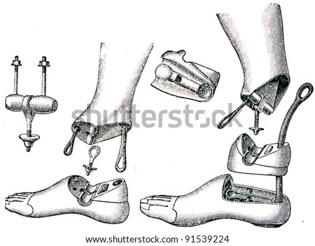 prostheses - artificial legs with simple and double joints - an illustration of the encyclopedia publishers Education, St. Petersburg, Russian Empire, 1896 - stock photo