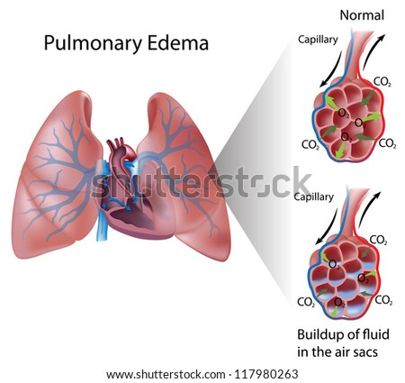 Pulmonary edema - stock photo