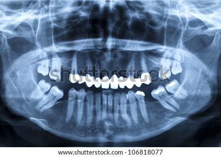 R�¶ntgenaufnahme eines menschlichen Kiefers - stock photo