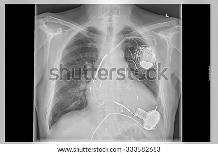 Radiograph left side of the chest. Heart with implanted pacemaker system. Below are the pump of the heart assist system. - stock photo