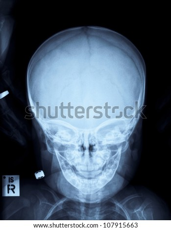 Radiograph of a child's head after accident - stock photo