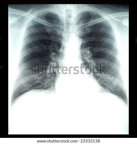 radiography of lungs - stock photo