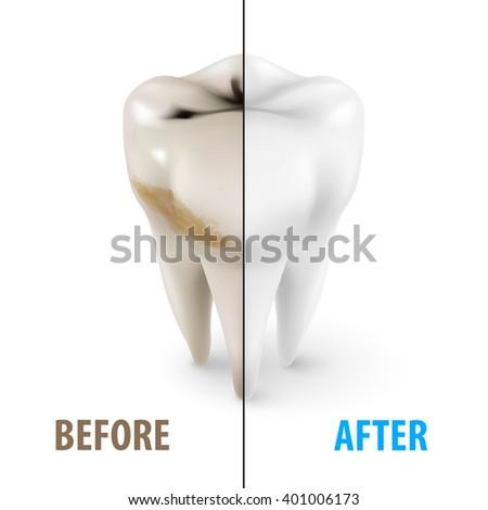 Raster version. Teeth Whitening Icon, Dentist Symbol in Isometric Style on White - stock photo