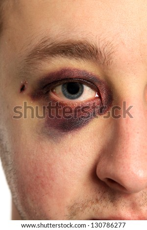 real eye bruise - stock photo