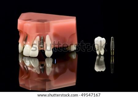 Real Human Wisdom tooth, Dental Titanium Implant and Plastic teeth model - stock photo