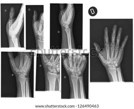 Real X-rays of the Hand and wrist. (broken wrist) - stock photo