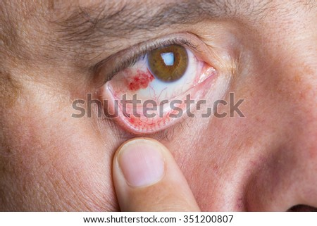 Red bloodshot eyes in a middle aged man - stock photo