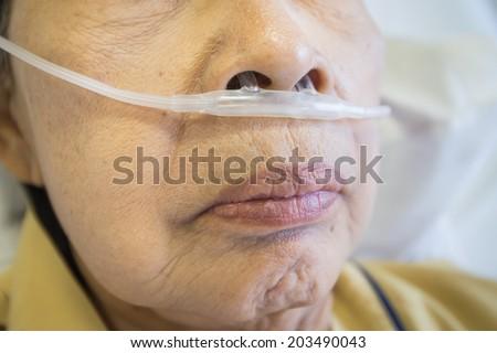 respiratory oxygen nasal catheter to the elder patient - stock photo