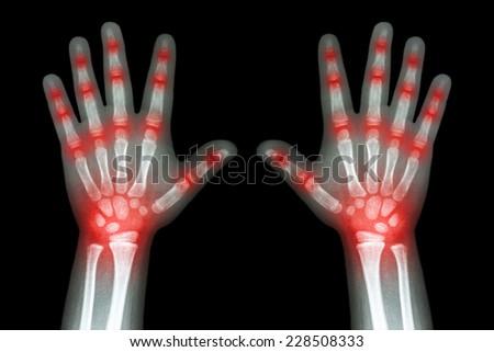 Rheumatoid arthritis ( X-ray both child hands and multiple joint arthritis ) - stock photo