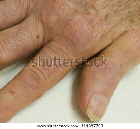 Rheumatoid Nodules in a man with severe rheumatoid arthritis - stock photo