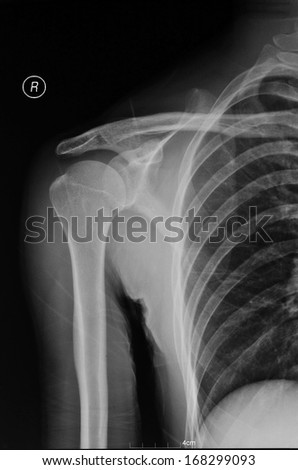Right shoulder is position X-ray pictures - stock photo