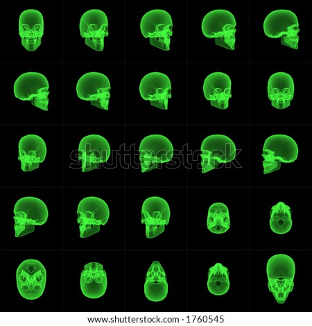Rotated sequence of x-ray skull images. Can be used to create an animated sequence. - stock photo