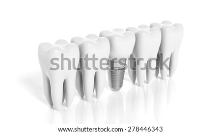 Row of teeth and dental implant isolated on white background - stock photo