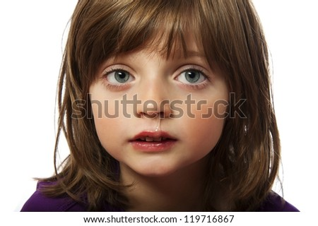 runny nose  - cold - ill little girl - stock photo