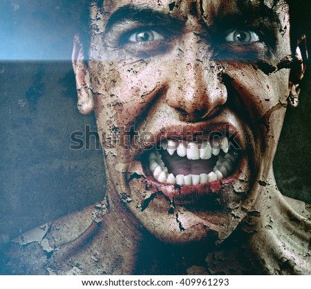 Scary Angry Man with Dry Peeling Skin - stock photo