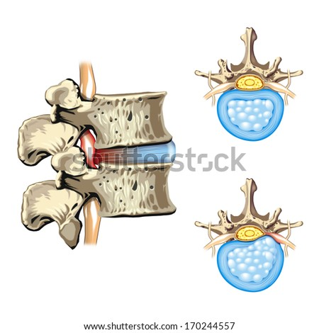 Schematic drawing of hernia of the disc, slipped disc - stock photo