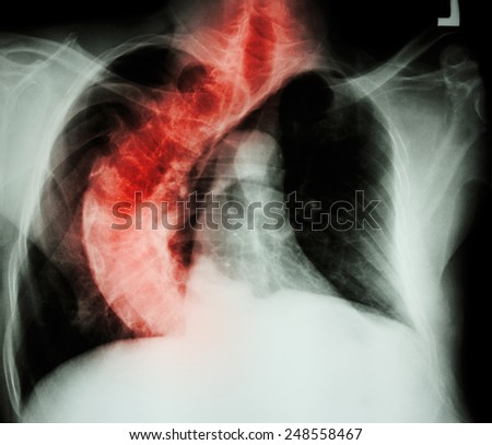 Scoliosis ( crooked spine ) X-ray chest of old people with  crooked spine - stock photo