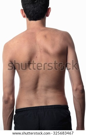 scoliosis, thin man on his back, no shirt. curvature of the spine visible - stock photo