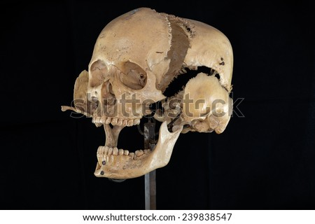 separate skull - stock photo
