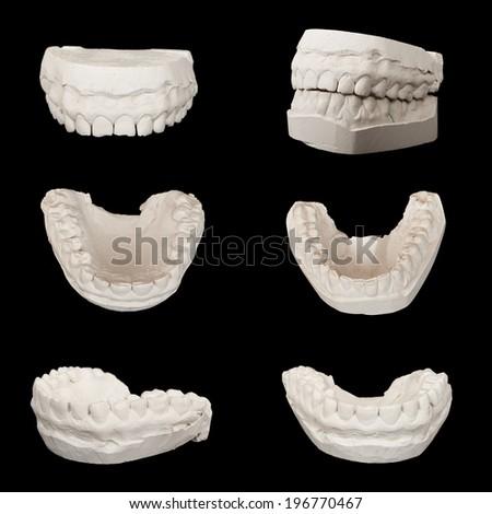 Set of Dental casting gypsum models plaster cast stomatologic human jaws. Isolated on black - stock photo
