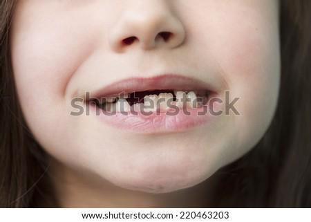 Sic years old child teeth closeup - stock photo
