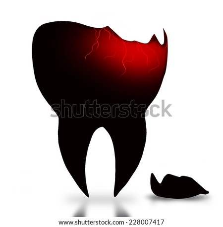 Sick tooth with crack - stock photo