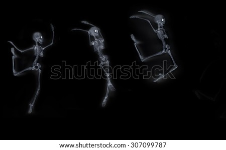 Silly dancing medical skeleton on xray machine - stock photo