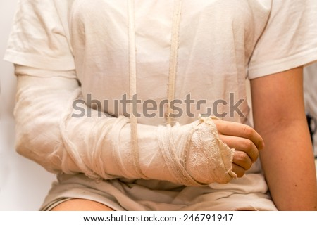 sitting close up girl in front of the camera, wearing the white t-shirt, with the white medicine bandage on injury arm and elbow. the shot illustrated medicine, car and other accidents, violence. - stock photo