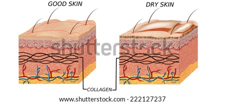 Skin anatomy diagram - comparation good skin and dry.  Illustration of skin cross section showing good skin and dry skin. - stock photo