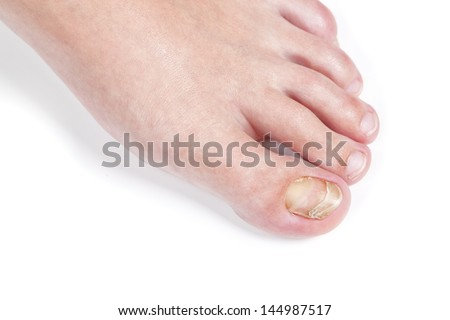 Skin fungus on the nail, on the female foot. Close-up. - stock photo