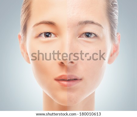 Skin of young woman before and after the cosmetics procedure, problem and smooth skin, concept of skincare - stock photo
