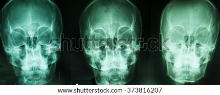 skull bone is show from skull radiography - stock photo