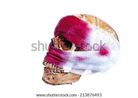 Skull  injury - stock photo