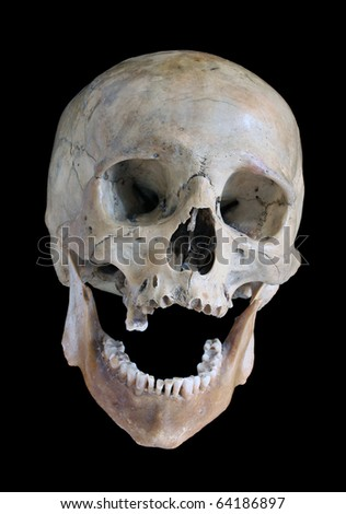 Skull of the person. - stock photo