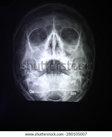 Skull x-ray - stock photo