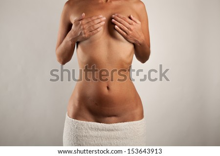 Slender woman with scars on her abdomen - stock photo