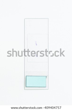 Slide tissue biopsy from prostate tissue for diagnosis in pathology laboratory. - stock photo