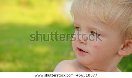 Small boy with mosquito sting on his face. Nature in the background. Child concept. - stock photo