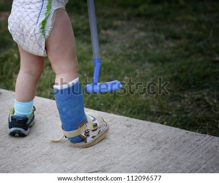 Small child with broken leg in cast - stock photo